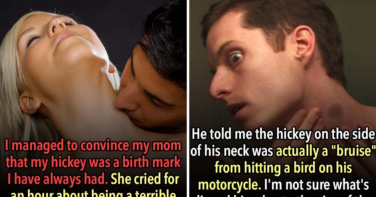 These 21 People Came Up With Hilarious Excuses For Their Hickies