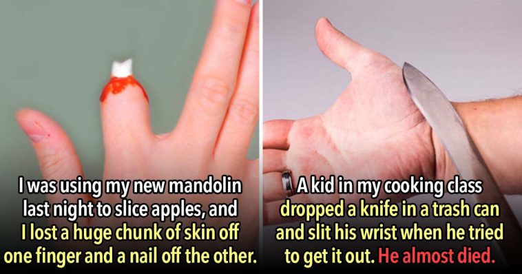 These 23 People Endured the Worst Kitchen Injuries