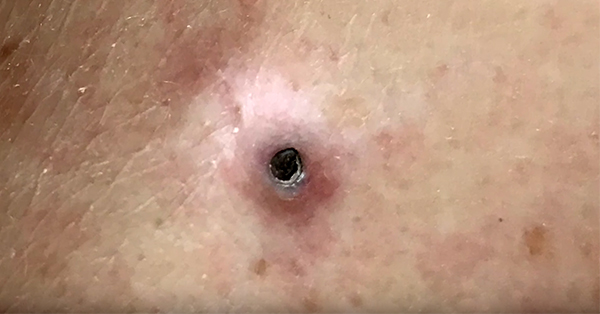 Dr. Pimple Popper Strikes A 'Goldmine' With This Gargantuan Blackhead