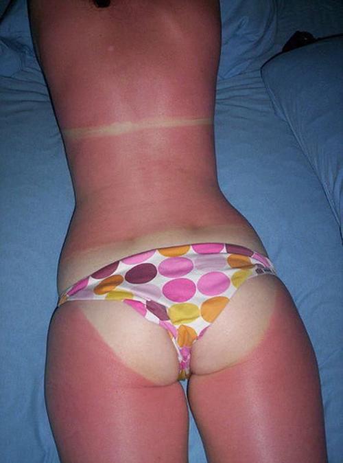 sunburn-8.jpg