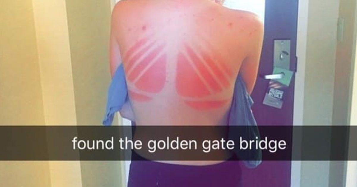 20+ Pictures That Prove The Sun Hates Your Guts
