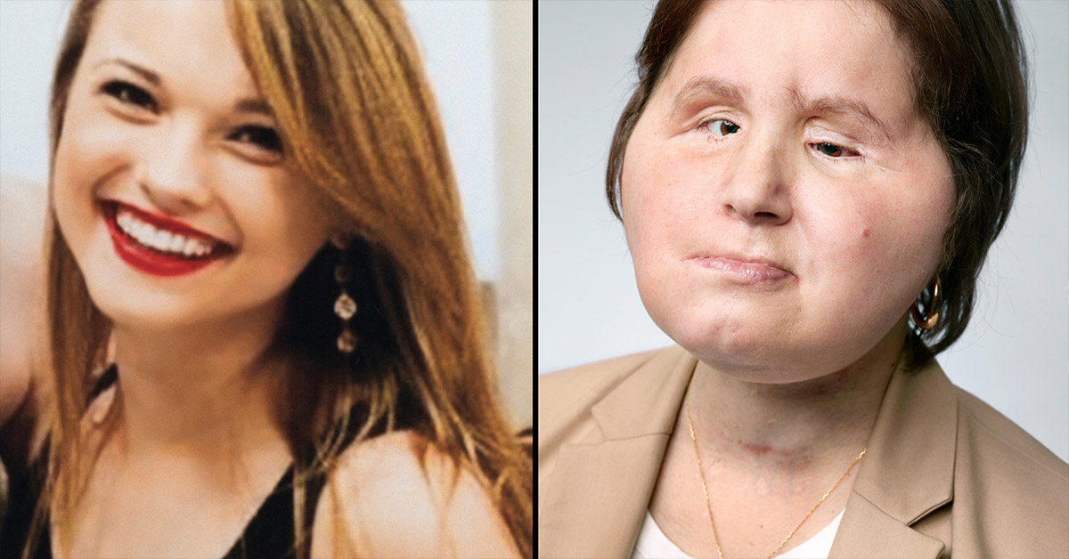 This 21-Year-Old Is The Youngest Person To Receive A Full Face Transplant